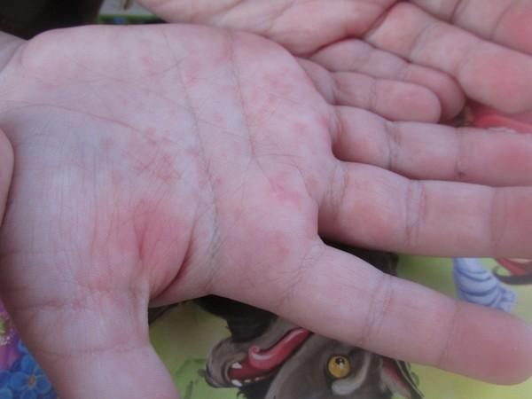 Сыпь на ладошках ребенка фото
